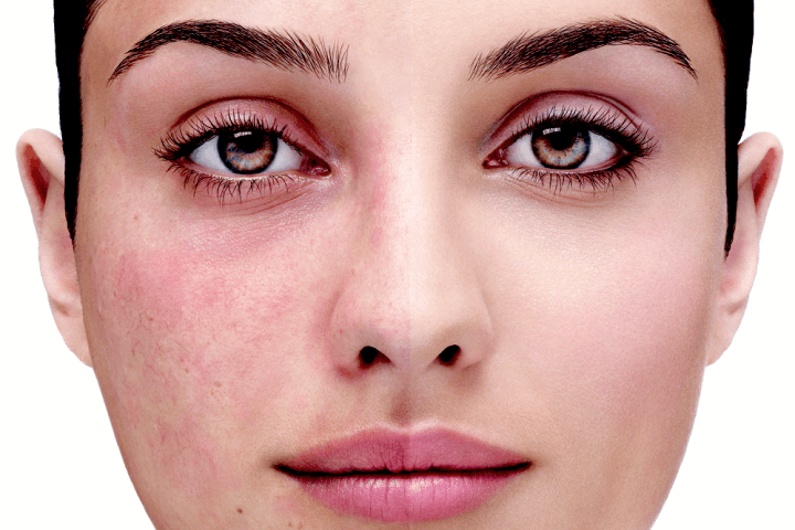 What is the difference between rosacea and acne?