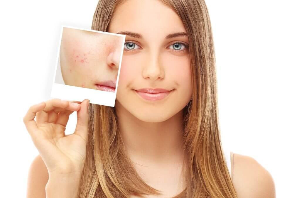 Do I really need acne scar removal?