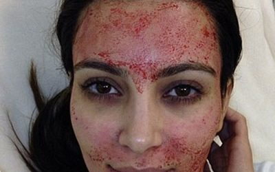 Everything you need to know about a Vampire Facial