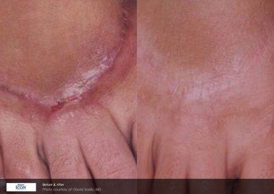 Laser scar revision