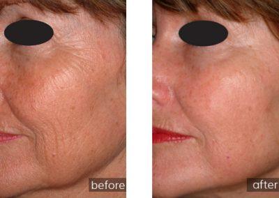Sun Spot /Age Spot Treatment