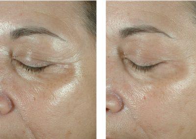 Wrinkles Treatment