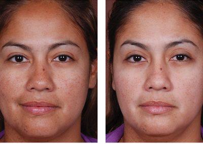 Sun Spot Laser Treatment