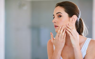 Why Your Breakouts Are Taking So Long To Go Away