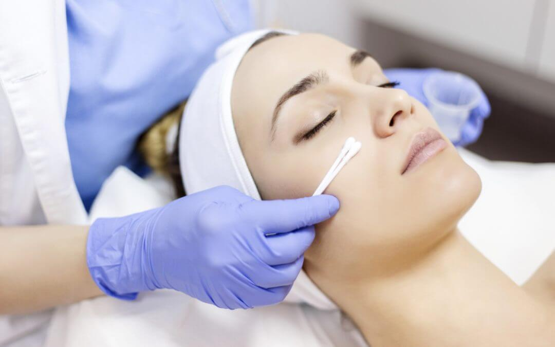 What Is A PCA Skin Chemical Peel?